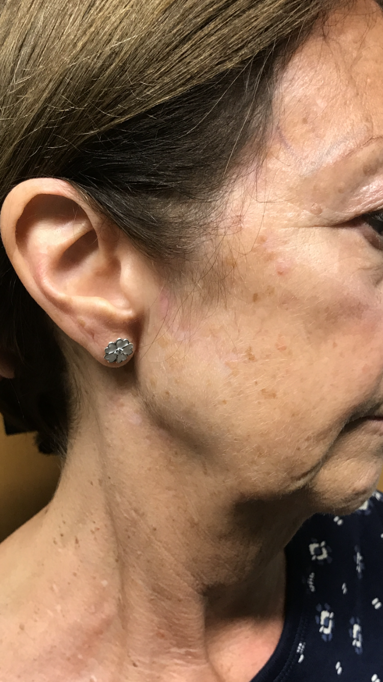Age Spots and Blemishes | Fairfield Hospital, St Helens